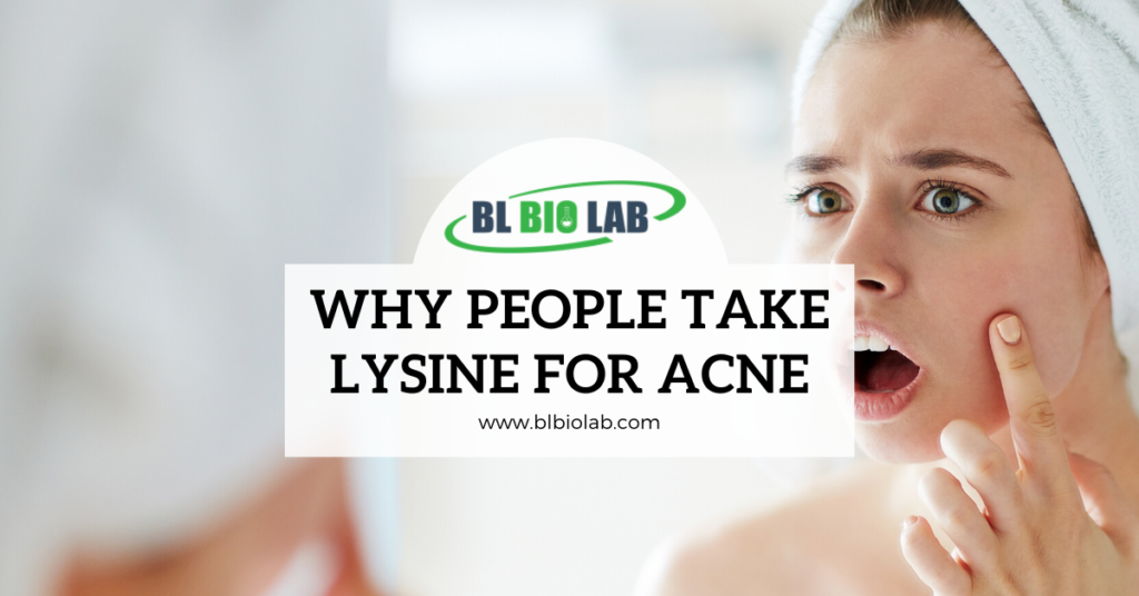 Why People Take Lysine for Acne (L-Lysine)
